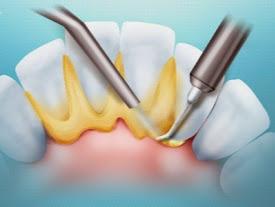 Почему необходимо удалять зубной камень