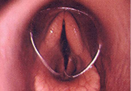 A severed catheter is usually coughed out within minutes, but if not, the catheter can be retrieved using an endoscope