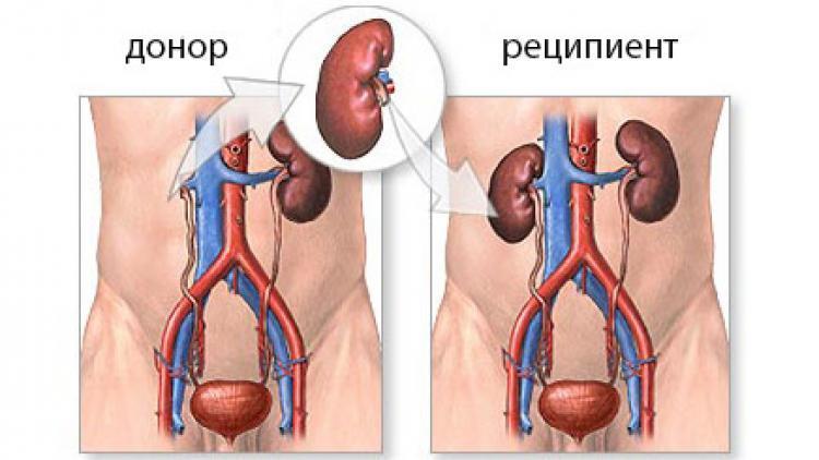 Диализ и трансплантация почек в Москве. Заказать услуги. Медицинский центр «Здоровая семья» - Здоровая Семья