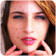 Face Blemishes Cleaner & Photo Scars Remover