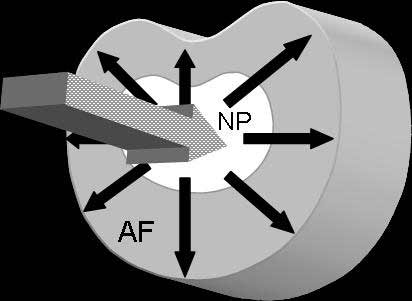The nucleus pulposus (NP) absorbs axial compressive forces along the spine