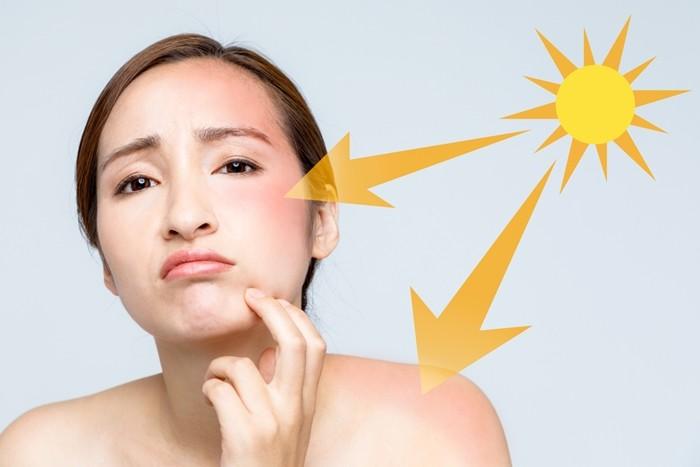 Ánh mặt trời là nguyên nhân chính gây ra tình trạng nám da và lão hóa