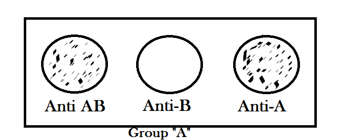 Blood group A