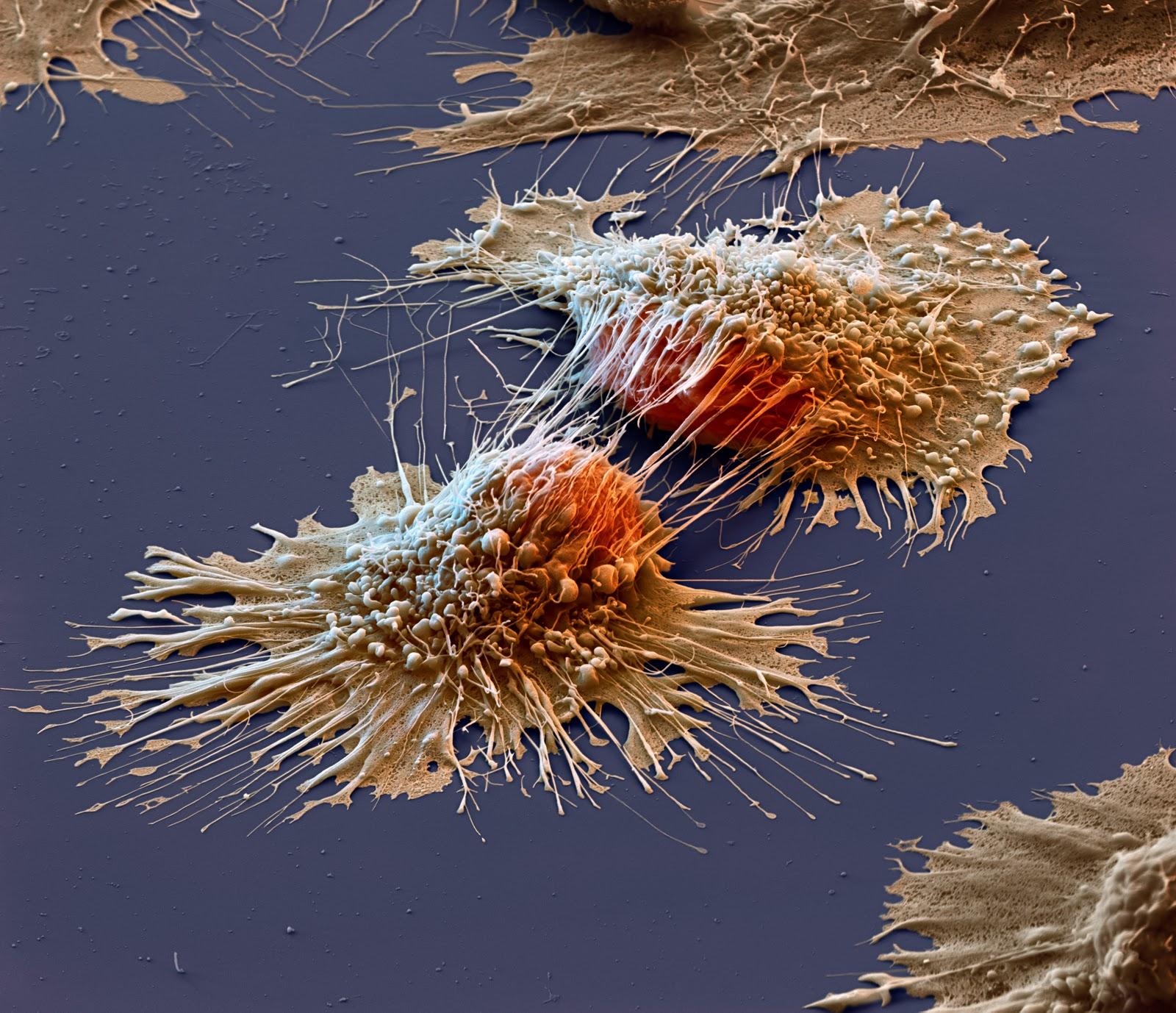 Novel Cancer Therapies