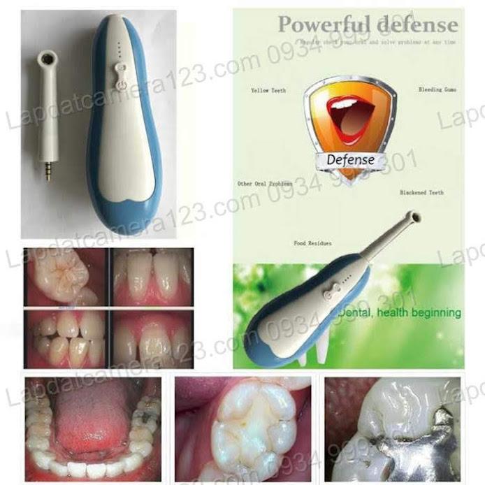 Camera nội soi răng