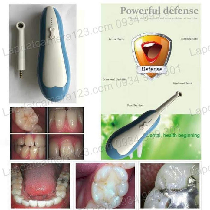 Camera nội soi răng camera nội soi răng