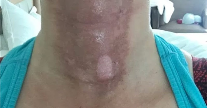 This woman's painful photos reveal why you should NEVER mix essential oils and sun