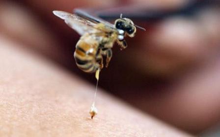 bee-sting_1626213c.jpg
