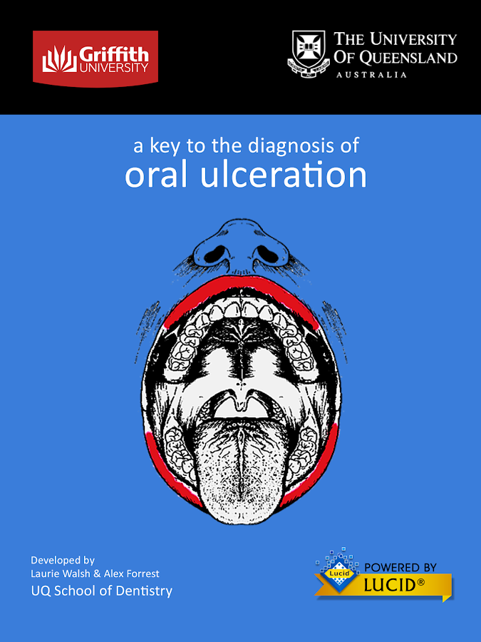 Diagnosis of Oral Ulceration- screenshot