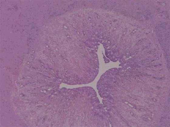 Гистологическая картина нормальной матки суки в период предтечки. Наблюдается умеренная степень гипертрофии эпителия. Железистый эпителий эндометрия начинает пролиферировать, утолщаясь в результате стимулирующего действия повышенной концентрации эстрогенов.