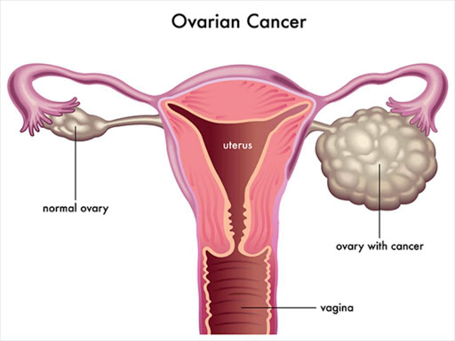 Chronic Ovarian Cysts Increase Risk Of Mental Health Issues Study