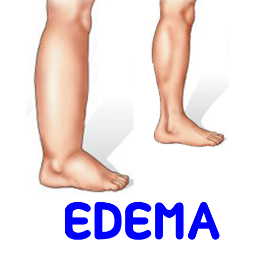 Edema swelling Symptoms 醫療 App LOGO-APP開箱王