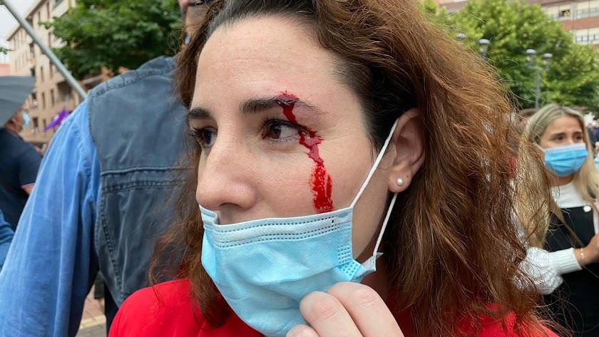 Imagen de Rocío de Meer tras el incidente en Sestao.