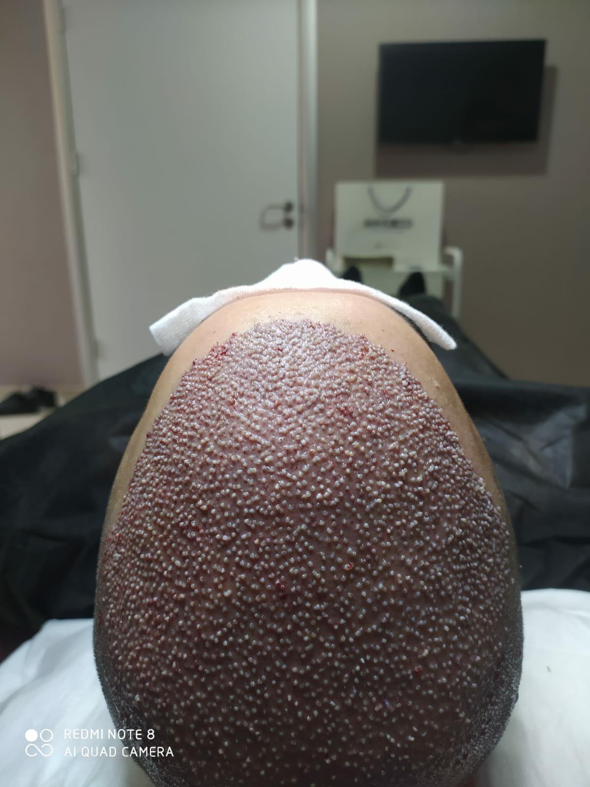 Ein Detaillierter Erfahrungsbericht über Meine Barthaartransplantation