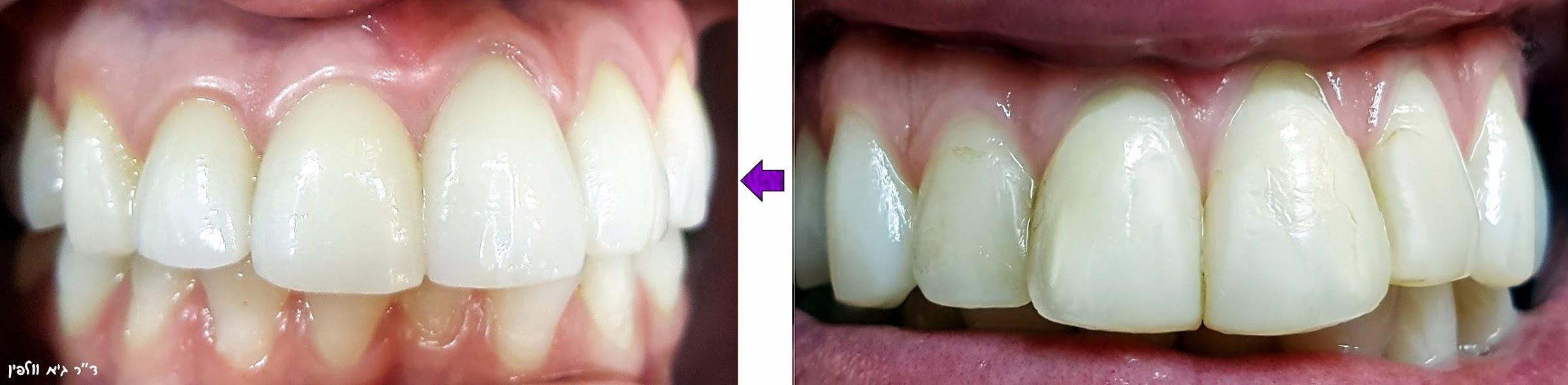 לפני ואחרי ציפויי שיניים חרסינה אסתטיים, אמנות החיוך smile design- ד''ר גיא וולפין, אסתטיקה דנטלית