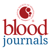 Blood Journals by ASH