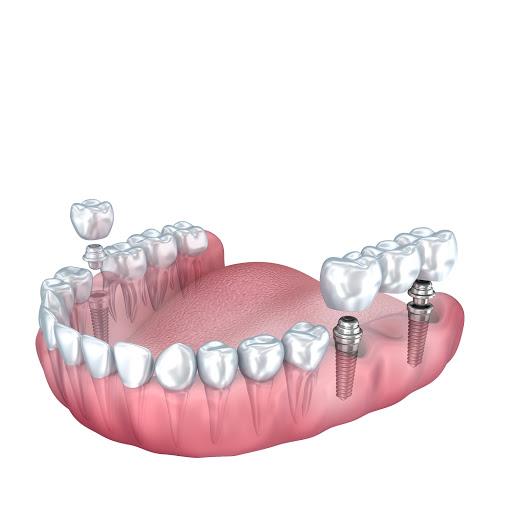 2 implantes para 3 dentes