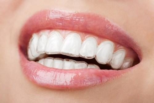 Các loại mắc cài niềng răng phân chia theo vật liệu và cấu tạo