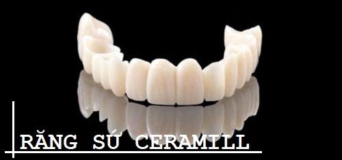 Răng sứ ceramill – thông số kỹ thuật và hiệu quả phục hình