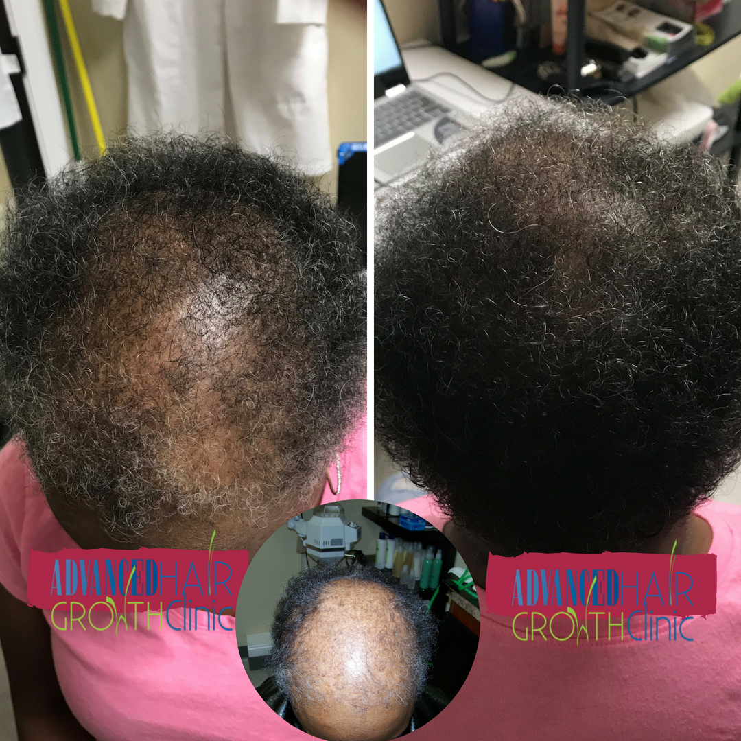 Advanced Hair Growth Clinic image