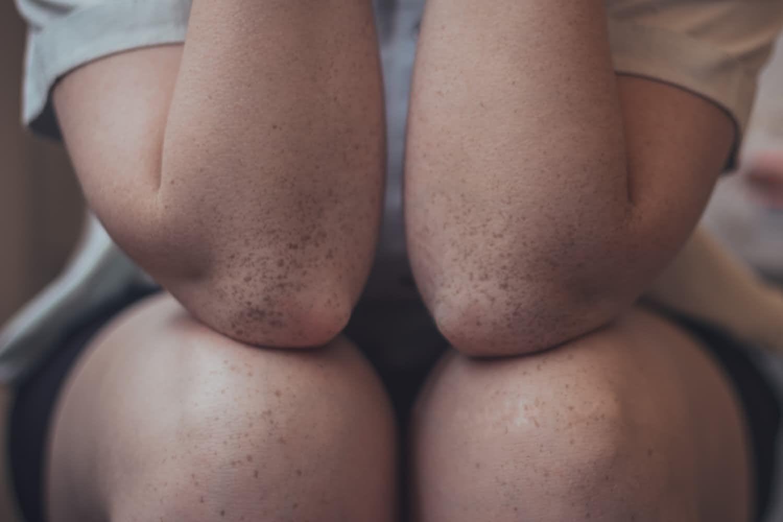 Revival van ascorrectie bij knie artrose!