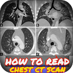 Interpretation of CT chest 1.0