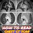 Interpretation of CT chest