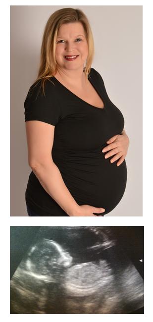 alternative fertility therapies