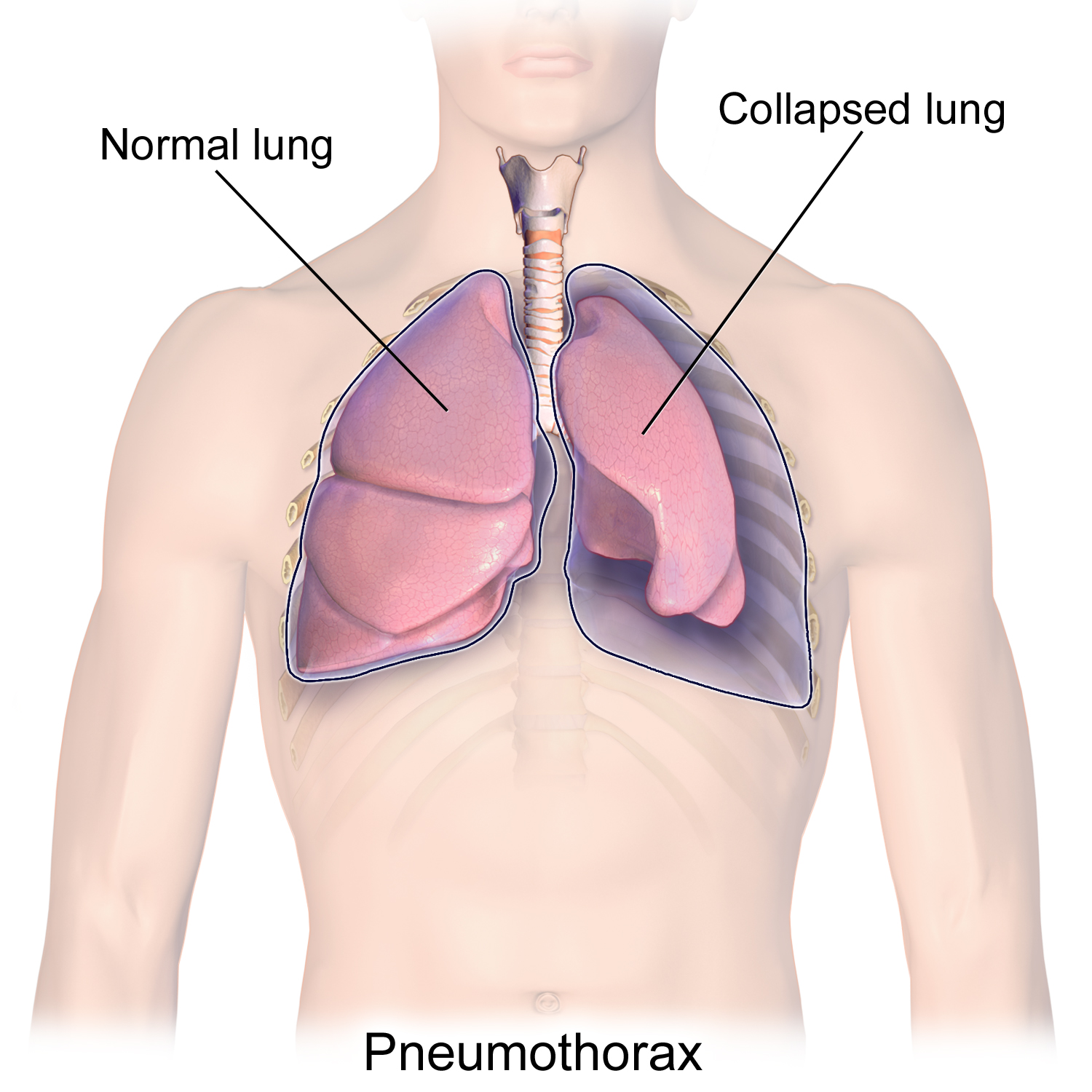 Image result for collapsed lung