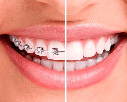 Tratamento Ortodontista em Itaim Bibi - Instituto Oral Itaim