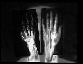 """Photo: © Olivier Perrot """"Rontgen"""" 1992 photogramme et radiographie"""