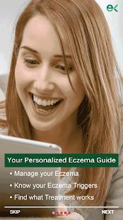 AI Eczema App: A tool to manage Eczema