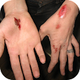 How To Treat Skin Abrasion