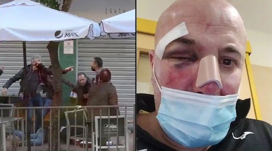 La brutal paliza de dos policías a un padre delante de su hija menor en Linares