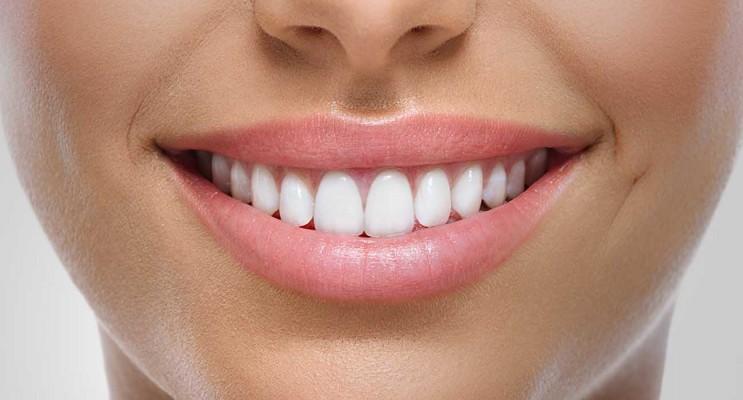 Prata Produtos Odontológicos LTDA | Como ter um Sorriso Bonito?