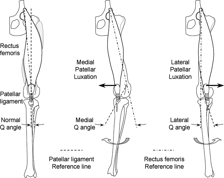 In humans, the quadriceps angle (Q-angle) is defined as the angle between the line of action of the quadriceps and the line formed by the patellar ligament and patella in normal limbs