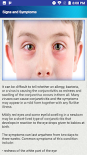Help for Baby Conjunctivitis & Pinkeye in Children - náhled