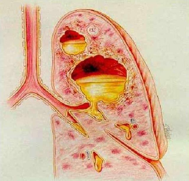 Hình ảnh minh họa áp xe phổi