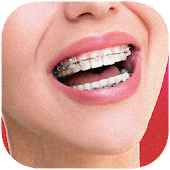 Braces Teeth Color Photo make