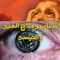 اعراض العين والحسد والعلاج منها