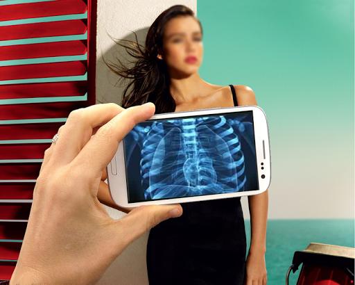 X射线扫描仪 Prank