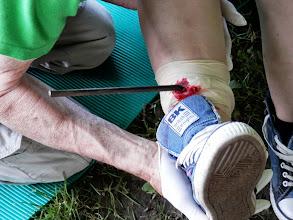 Photo: Ein weggeschleuderter Kreiselheuerzinken hat das Bein durchschlagen - was tun?