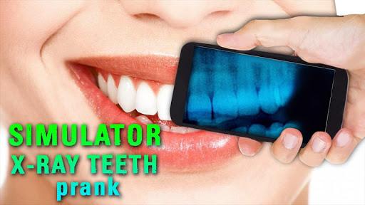 シミュレータX線歯のいたずら