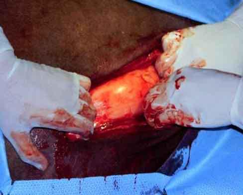 Operación cesárea en la camella: Disección de las capas musculares en enrejado.