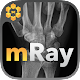 mRay - DICOM Viewer (app)