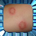 Ringworm Home Treatment icon