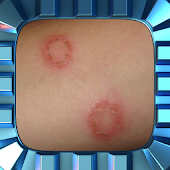 Ringworm Home Treatment