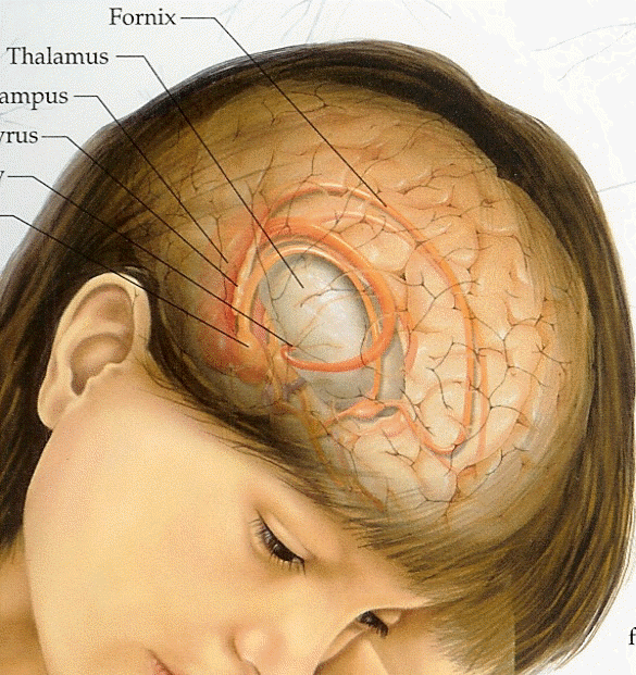 Brain Tumor Illustration
