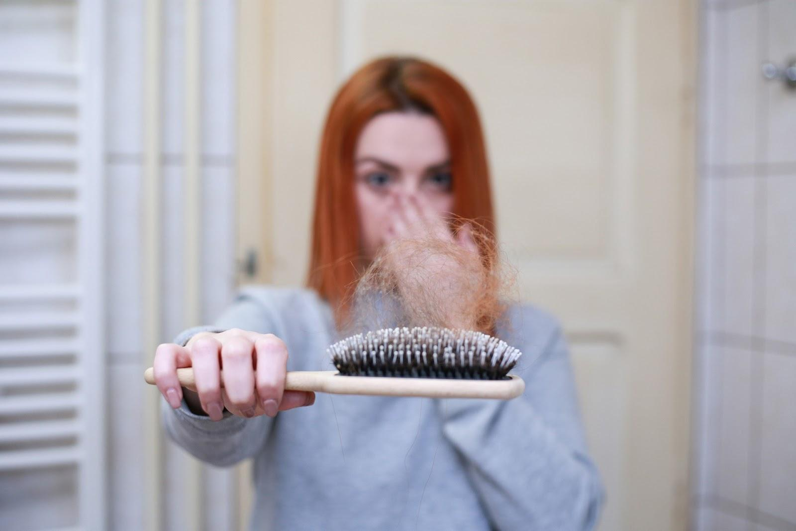 Hair Loss Management Tips From the Experts 1