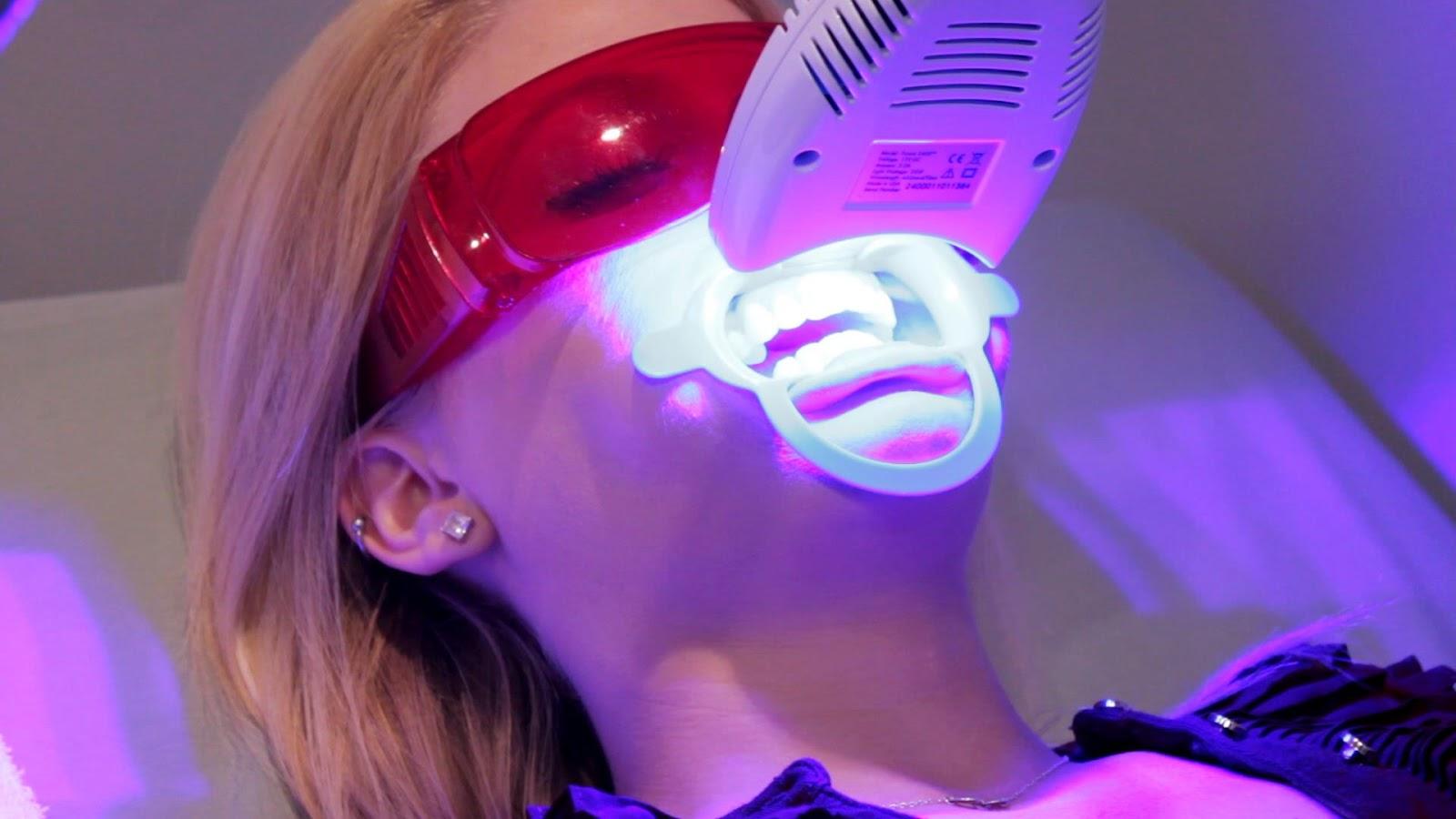 Klinik Ortamda Diş Beyazlatma